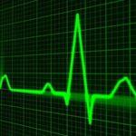 aneurisma aortico