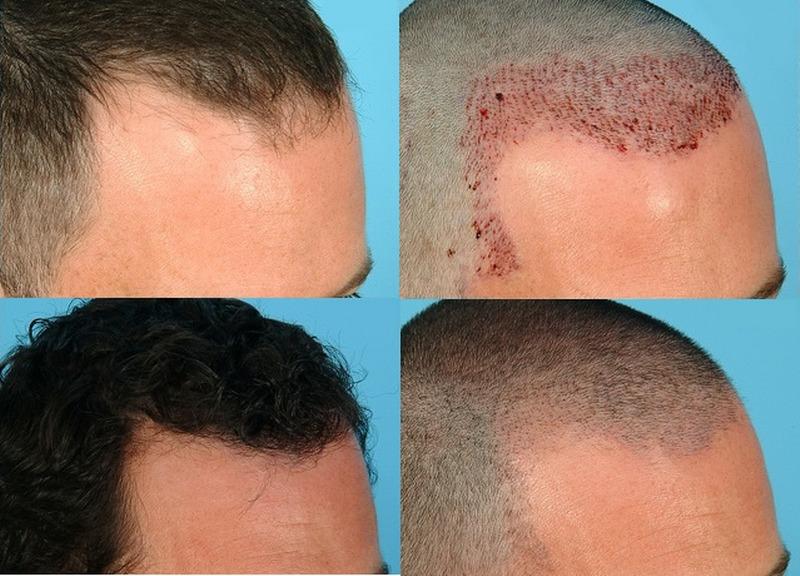 Trapianto di capelli: quando è necessario effettuarlo ...